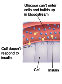 Closeup cross section of blood vessel near cells showing Type 2 diabetes. Cell doesn't respond to insulin. Glucose can't enter cells and builds up in bloodstream.