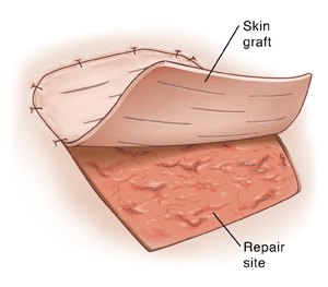 Top view of skin graft used to repair a wound site.