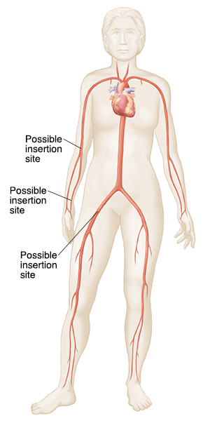 Outline of woman showing major arteries and veins, heart, and possible catheter insertion sites.