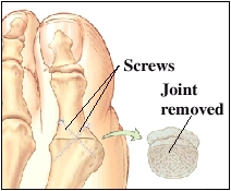 Image of big toe joint showing joint removed and screws fusing the bones together